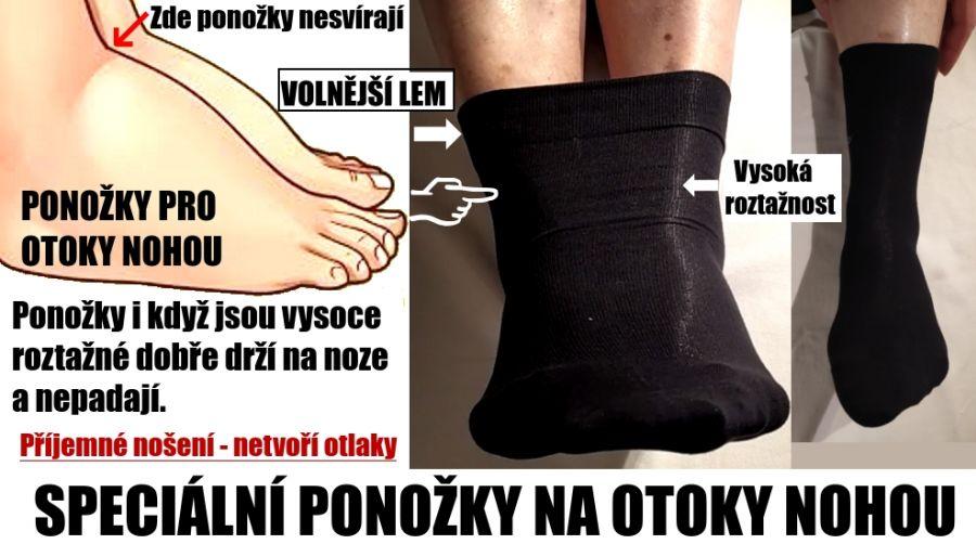 https://www.ponozky-zdravotni.cz/files/foto[8].jpeg